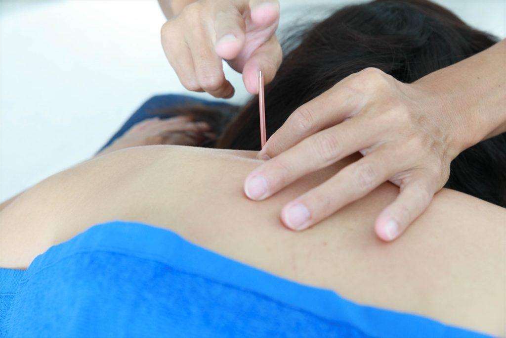 すずき鍼灸接骨院肩の鍼施術風景